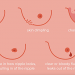 Breast cancer and its symptoms